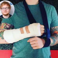 Ed Sheeran Breaks Wrist and Elbow in Bike Accident